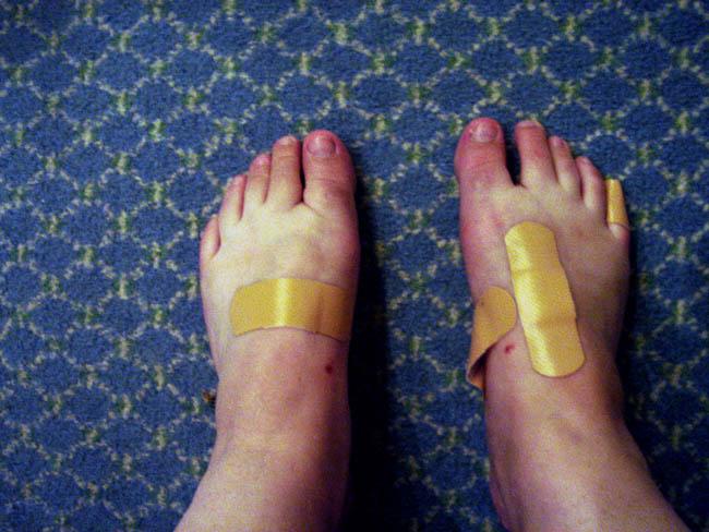 Sheila's feet (ouch!)